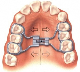 Rapid Palatal Expander - Anderson & Moopen Orthodontics